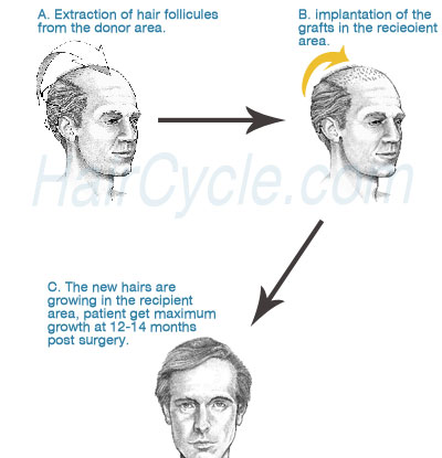 Hair Transplantation and the Effect of the Hair Cycle Products