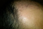 Hair Transplant Surgery Follow Up Healing using Hair Cycle